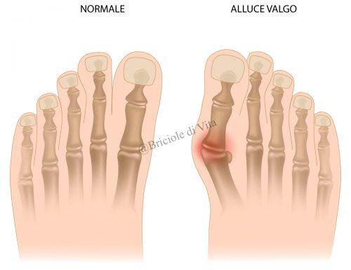 ALLUCE VALGO : cause ,sintomi ,rimedi